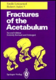 9780387521893: Fractures of the Acetabulum