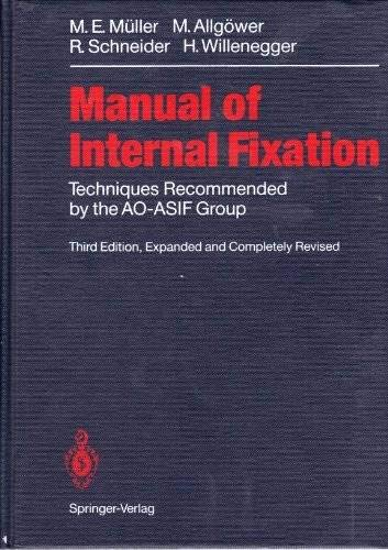 Manual of Internal Fixation: Techniques Recommended by: M. E. Muller,