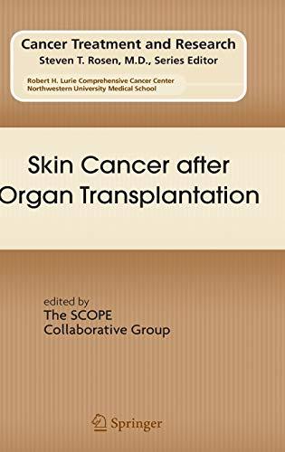 Skin Cancer After Organ Transplantation (Hardback)