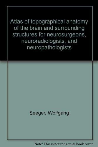 Atlas of topographical anatomy of the brain and surrounding structures for neurosurgeons, ...