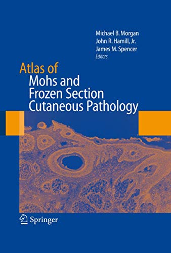 Atlas of Mohs and Frozen Section Cutaneous Pathology: Michael B. Morgan and John R. Hamill