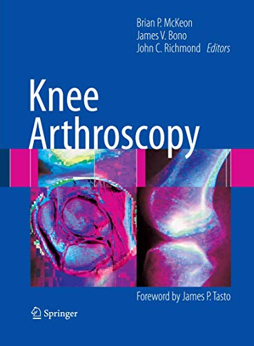 Knee Arthroscopy: Editor-Brian P. McKeon;