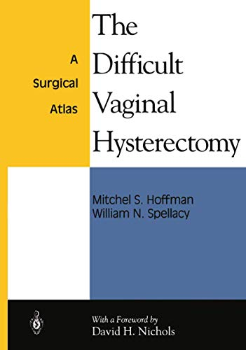 9780387942735: The Difficult Vaginal Hysterectomy: A Surgical Atlas