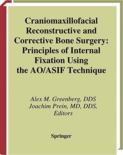 9780387946863: Craniomaxillofacial Reconstructive and Corrective Bone Surgery: Principles of Internal Fixation Using AO/ASIF Technique