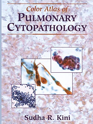 9780387953717: Color Atlas of Pulmonary Cytopathology