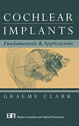 9780387955834: Cochlear Implants: Fundamentals and Applications (Modern Acoustics and Signal Processing)
