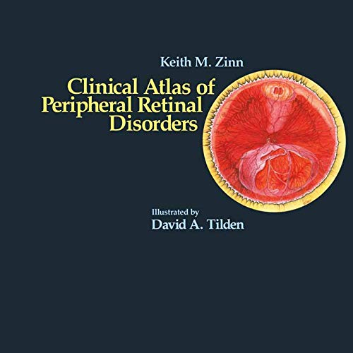 Clinical Atlas of Peripheral Retinal Disorders: Zinn, Keith M.; Tilden, David A.