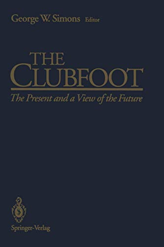 9780387978765: The Clubfoot: The Present and a View of the Future