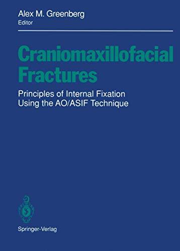 9780387979021: Craniomaxillofacial Fractures: Principles of Internal Fixation Using the AO/ASIF Technique