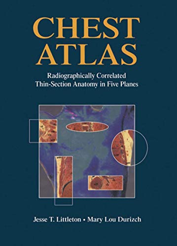 9780387979281: Chest Atlas: Radiographically Correlated Thin-Section Anatomy in Five Planes