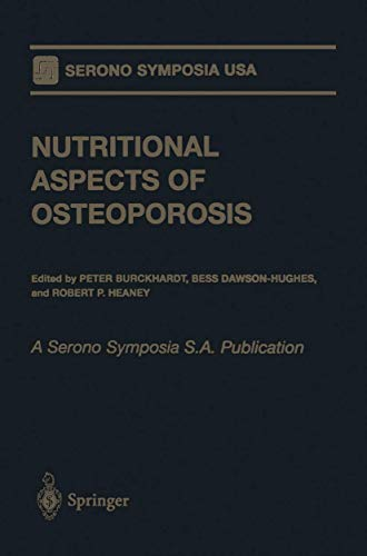 9780387984940: Nutritional Aspects of Osteoporosis: A Serono Symposia S.A. Publication (Serono Symposia USA)