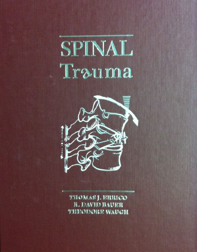 Spinal Trauma: Thomas J., M.D. Errico
