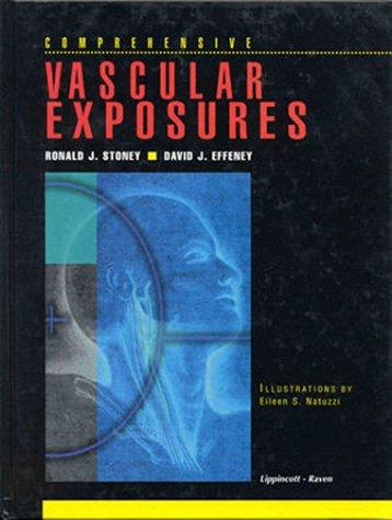 9780397513420: Comprehensive Vascular Exposures (Books)