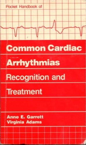 Pocket Handbook of Common Cardiac Arrhythmias: Recognition and Treatment: Garrett, Anne E.