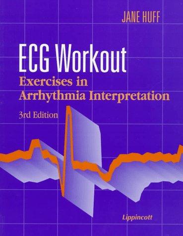 9780397553716: Ecg Workout: Exercises in Arrhythmia Interpretation