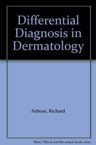 Differential Diagnosis in Dermatology: Richard Ashton, Barbara