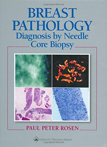 9780397587902: Breast Pathology: Diagnosis by Needle Core Biopsy