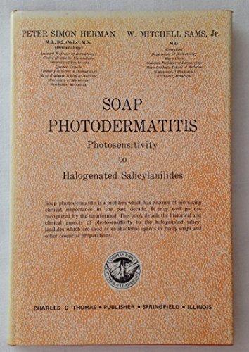 Soap photodermatitis photosensitivity to halogenat: Peter Simon Herman
