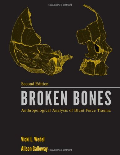 9780398087685: Broken Bones: Anthropological Analysis of Blunt Force Trauma