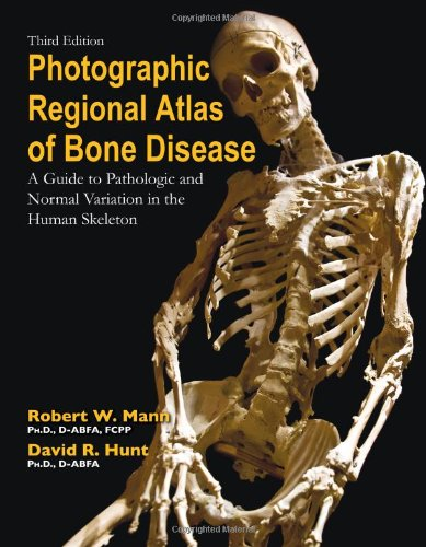 9780398088262: Photographic Regional Atlas of Bone Disease: A Guide to Pathologic and Normal Variations in the Human Skeleton