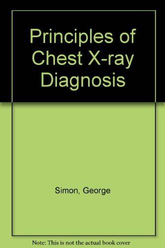 9780407363236: Principles of Chest X-ray Diagnosis