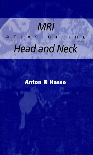 9780412043819: MRI ATLAS OF THE HEAD AND NECK (Hodder Arnold Publication)