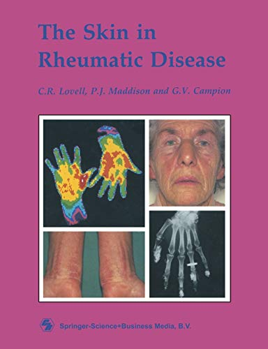 The Skin in Rheumatic Disease: Maddison, Lovell; Campion
