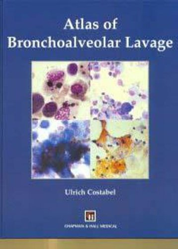 9780412792700: Atlas of Bronchoalveolar Lavage