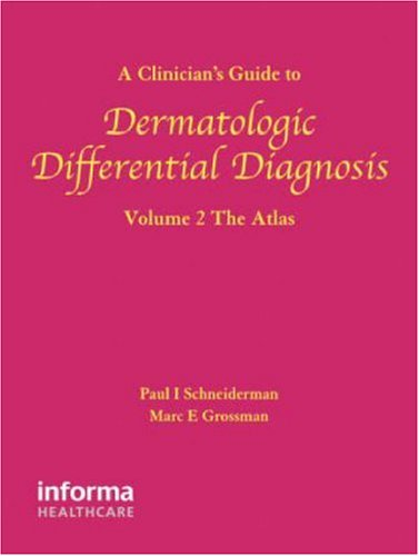 9780415390514: A Clinician's Guide to Dermatologic Differential Diagnosis (Encyclopedia of Differential Diagnosis in Dermatology S) (Volume 2)