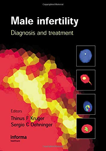 9780415397421: Male Infertility: Diagnosis and Treatment