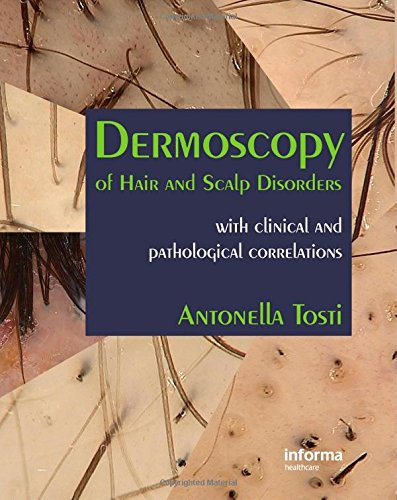 9780415404891: Dermoscopy of Hair and Scalp Disorders: With Clinical and Pathological Correlations