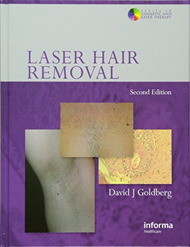 9780415414128: Laser Hair Removal (Series in Cosmetic and Laser Therapy)