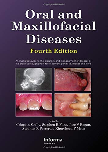 9780415414944: Oral and Maxillofacial Diseases, Fourth Edition