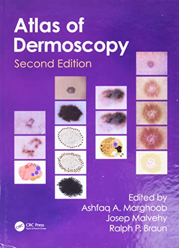 9780415458955: An Atlas of Dermoscopy, Second Edition