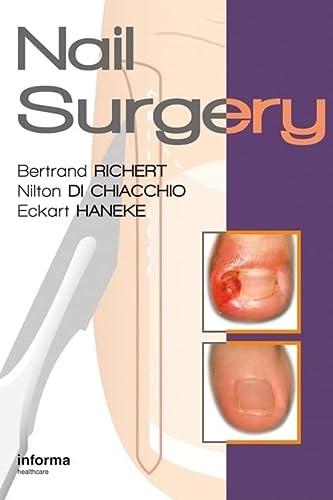 9780415472333: Nail Surgery