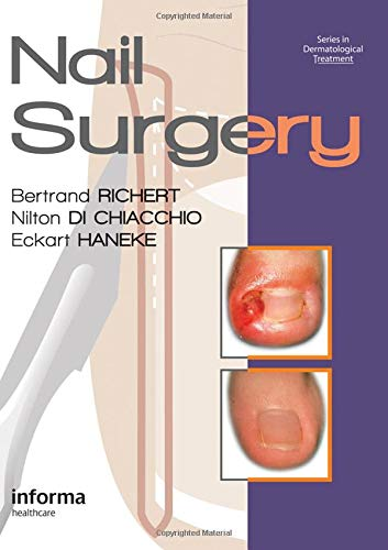 9780415472333: Nail Surgery (Series in Dermatological Treatment)