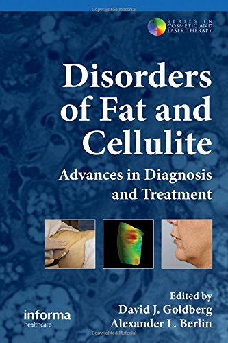 9780415477000: Disorders of Fat and Cellulite: Advances in Diagnosis and Treatment (Series in Cosmetic and Laser Therapy)