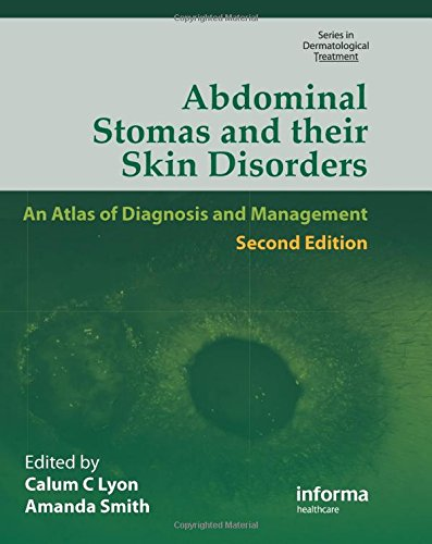 9780415553483: Abdominal Stomas and Their Skin Disorders, Second Edition - Dansac Edition