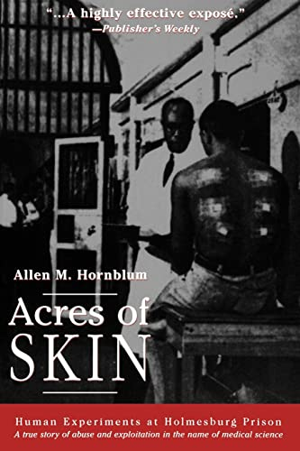 9780415923361: Acres of Skin: Human Experiments at Holmesburg Prison