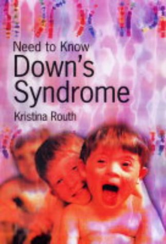 9780431188430: Need to Know: Downs Syndrome Hardback
