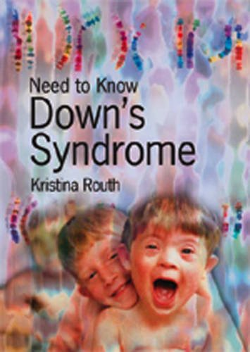 9780431188508: Need to Know: Downs Syndrome Paperback