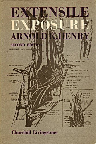 Extensile Exposure, 2nd Edition: Henry, Arnold K.