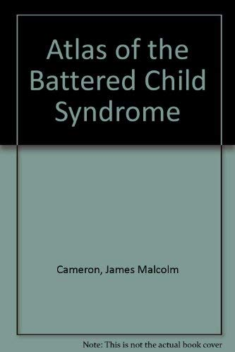 9780443012532: Atlas of the Battered Child Syndrome