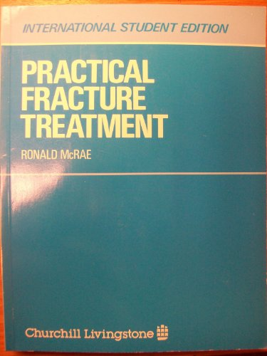 9780443026973: Practical fracture treatment