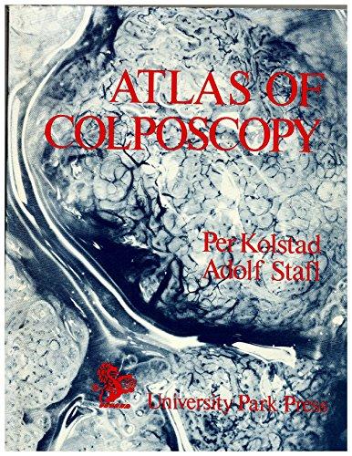 9780443027789: Atlas of Colposcopy