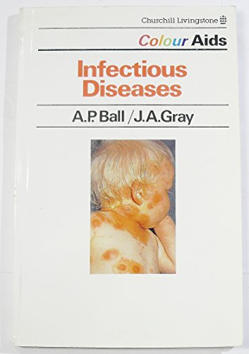 9780443029592: Infectious Diseases (Colour AIDS)