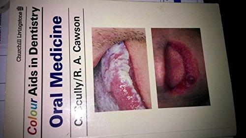 9780443038754: Oral Medicine (Colour Aids in Dentistry)