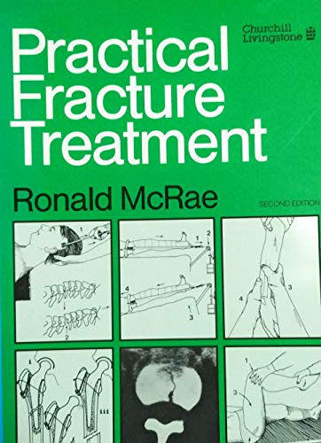 9780443040078: Practical Fracture Treatment