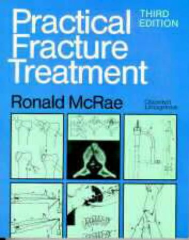 9780443048098: Practical Fracture Treatment