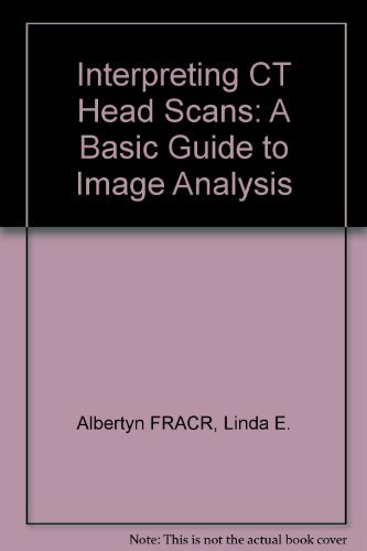 9780443050299: Interpreting CT Head Scans: A Basic Guide to Image Analysis